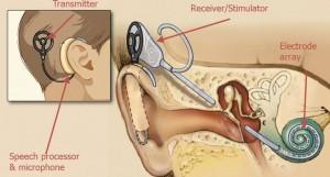 implant graphic