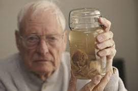 einstein's brain in jar