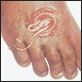worm foot